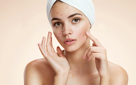 Picture for category Acne Care