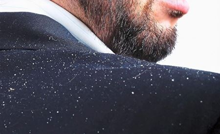 Picture for category Dandruff