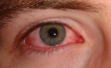 Picture for category Conjunctivitis