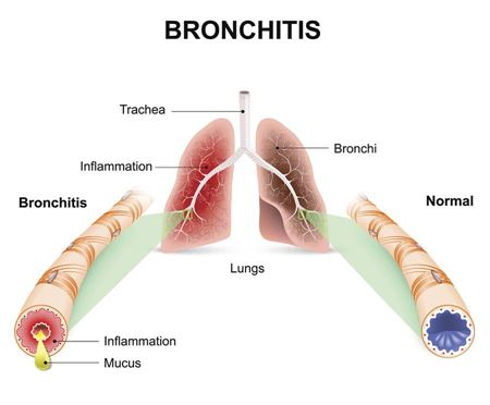 Picture for category Bronchitis